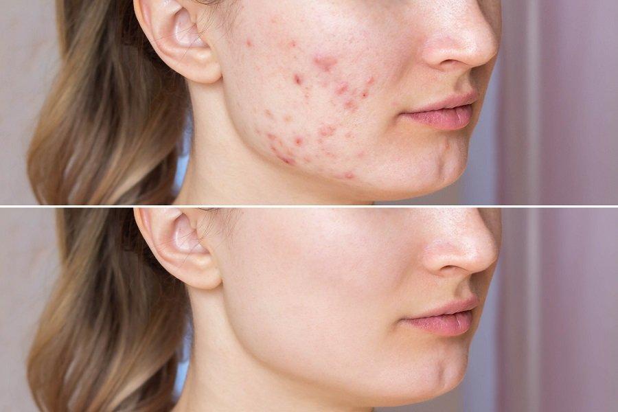 como combatir cicatrices acne